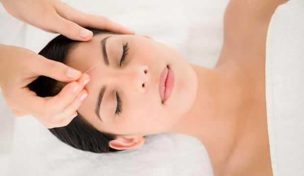 akapunktur tedavisi